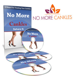 No More Cankles - Surgery Free Method